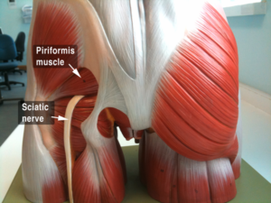 Model of sciatic nerve associated with hamstring injury