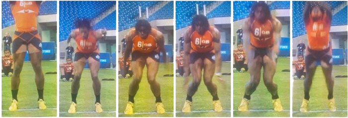 rg3 valgus knee collapsing inwards jumping sign of acl