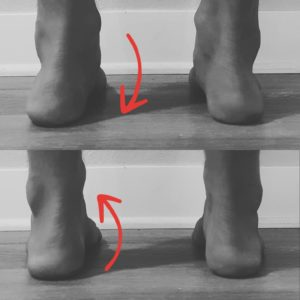 Split image showing re-orientation of collapsed arch with achilles tendonitis
