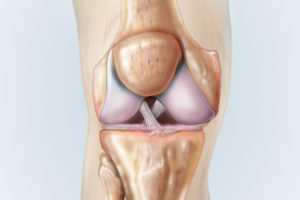 Diagram showing the ACL and PCL within the knee